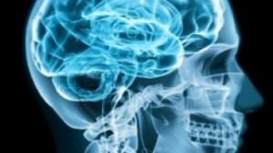 Brain Tumours