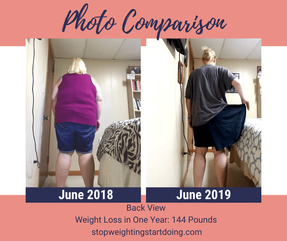 A comparison photo of Nicky Bicksler one year apart with a total weight loss of 144 pounds. Day of Gastric Sleeve Surgery: The Day That Will Absolutely Change Your Life | One Year Comparison Back