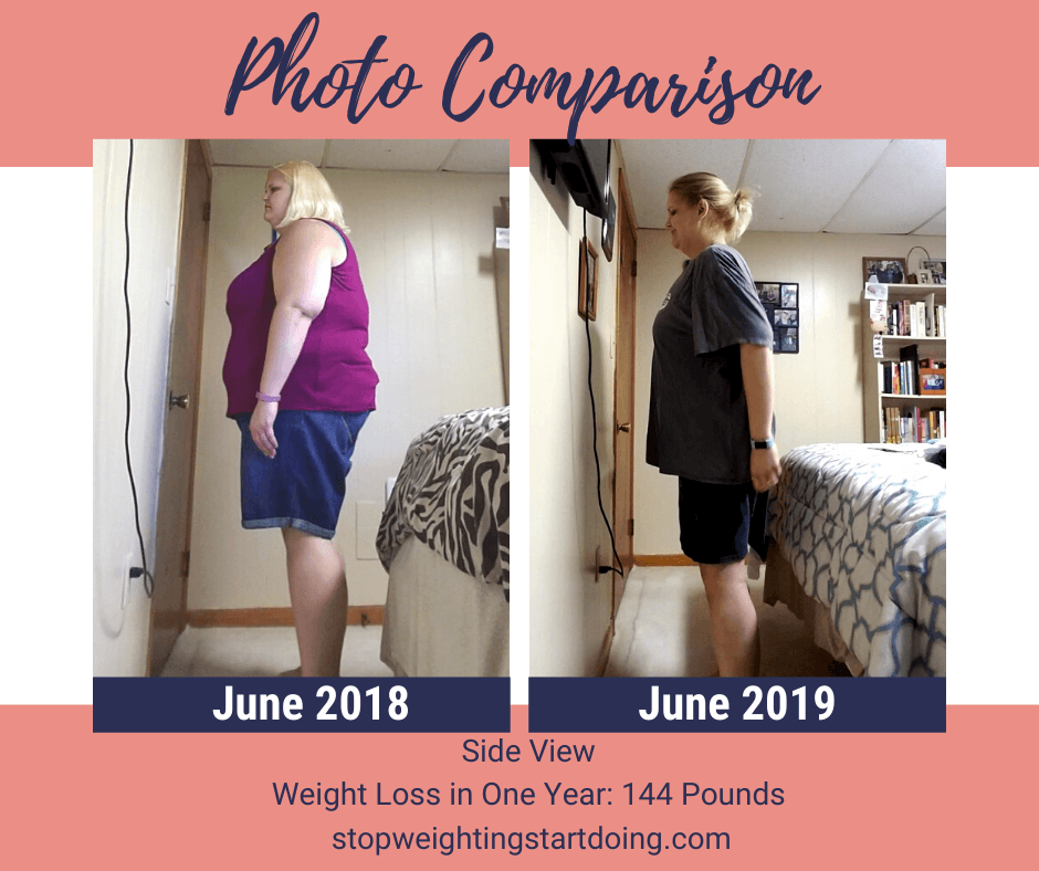 A comparison photo of Nicky Bicksler one year apart with a total weight loss of 144 pounds. Day of Gastric Sleeve Surgery: The Day That Will Absolutely Change Your Life | One Year Comparison Side