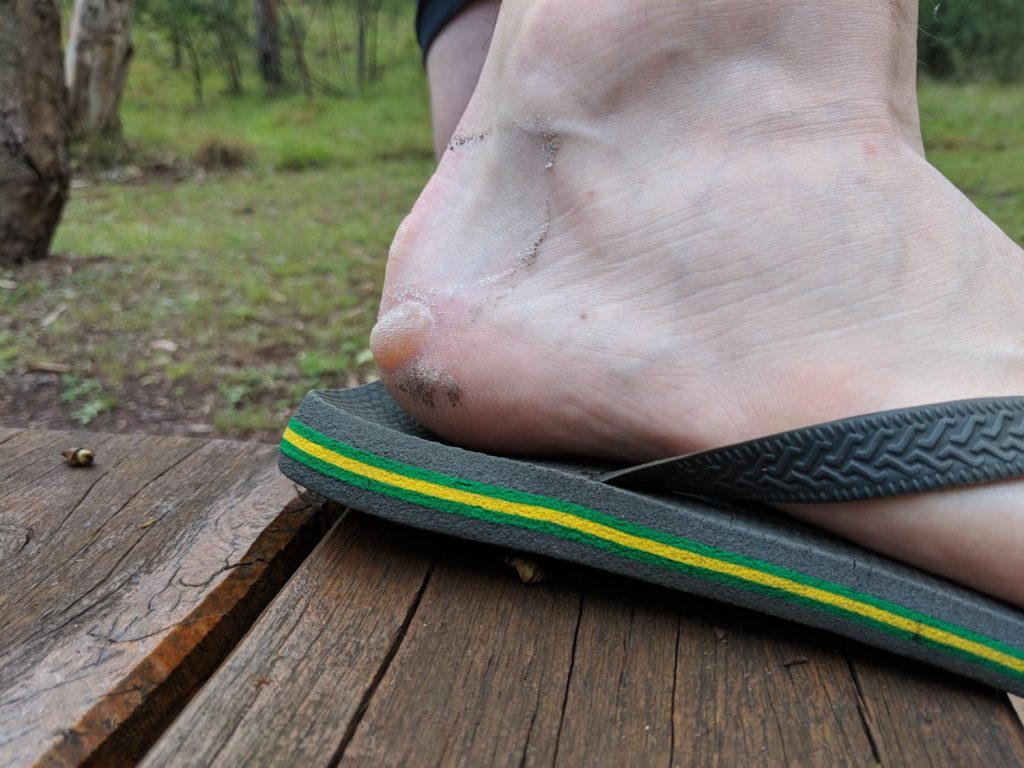 10 Hiking Lessons Learnt On The Green Gully Track (NSW), Rachel Dimond, Blister, heel, closeup, thong, gross