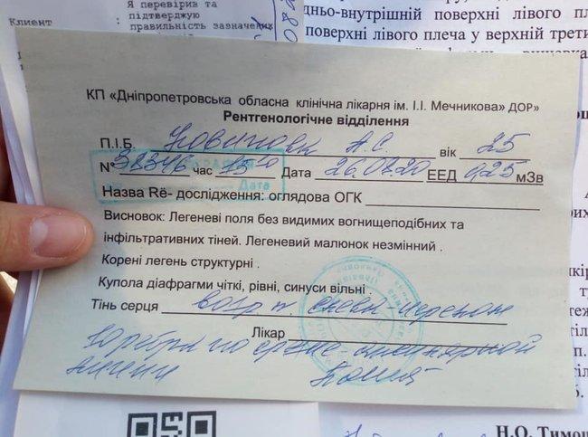 Охорона Зеленського побила дівчину в Дніпрі, - екснардеп Денисенко 01