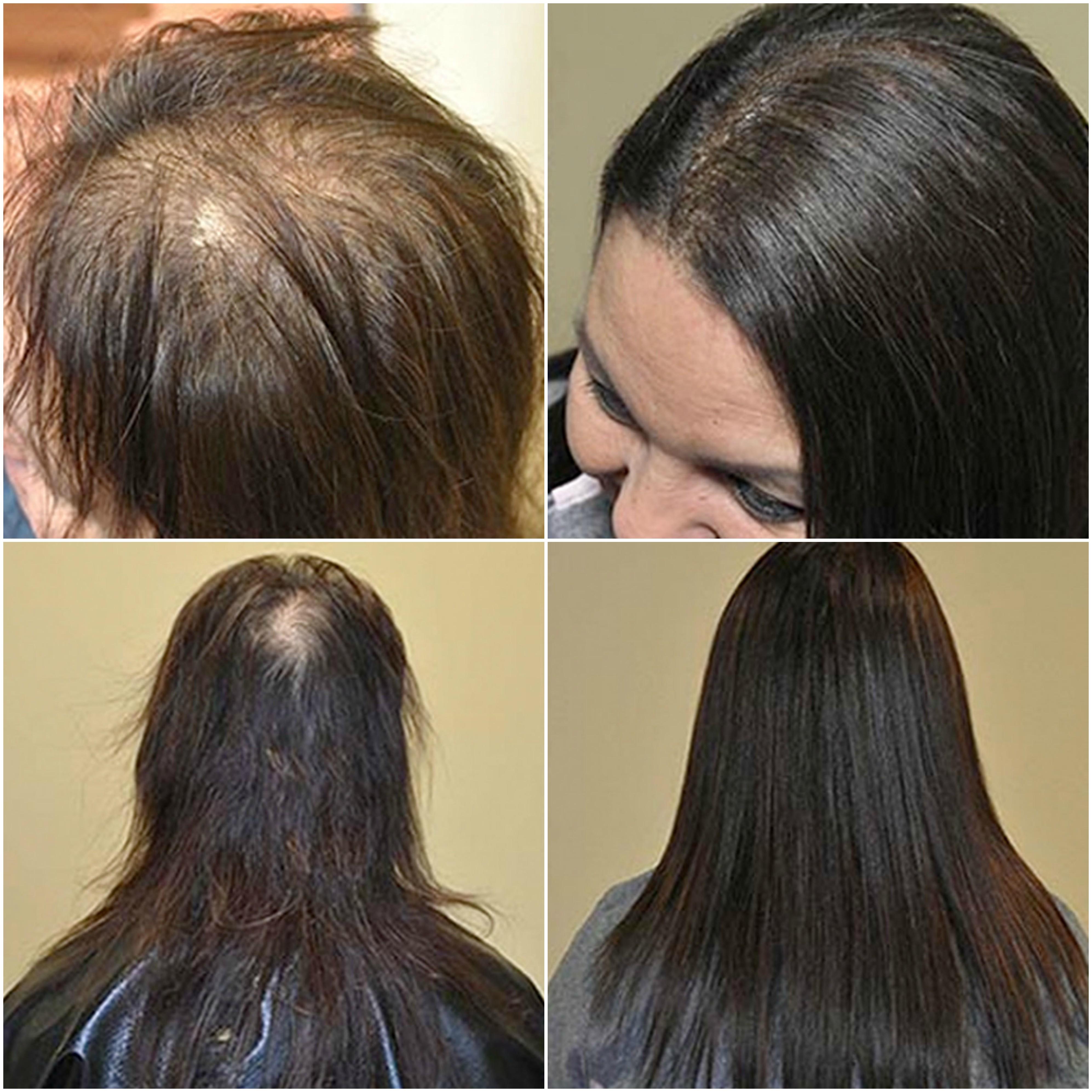 Keratin extensions on thin hair
