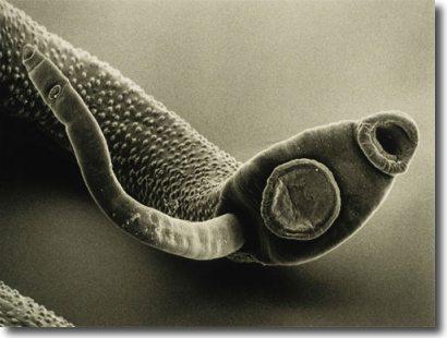 Intestinal Parasites Stool Test
