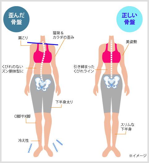 骨盤が歪んで股関節がポキポキなる姿勢の図