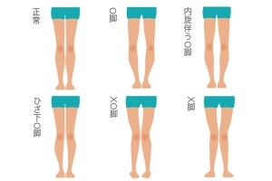 O脚分類タイプ