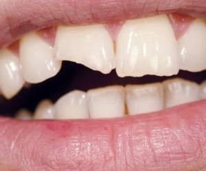 Broken, Chipped, Cracked or Fractured Teeth