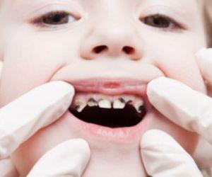 Black or Dark Cavities in Teeth
