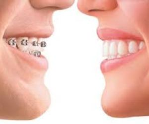 Orthodontics and braces