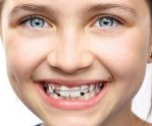 Preventive and interceptive orthodontics for children