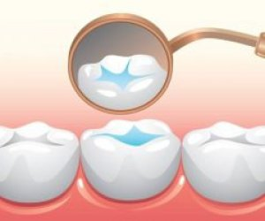 Sealants to fill in deep grooves in teeth