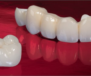 Custom shaded tooth colored crowns and caps