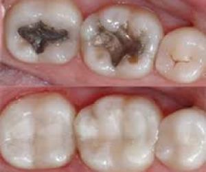 Tooth Colored White Fillings
