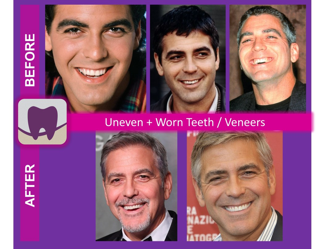 George Clooney Before and After