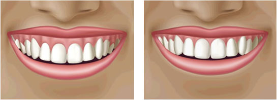 Reshaping Gums