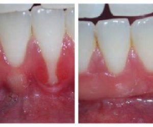 Gum Surgeries and Grafts