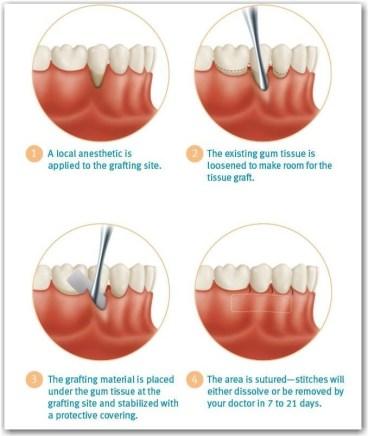 soft tissue graft procedure