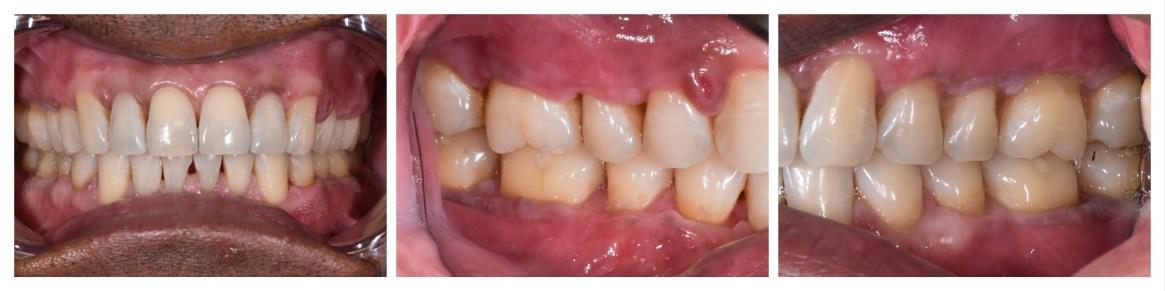 Gum recessions after grafting procedure