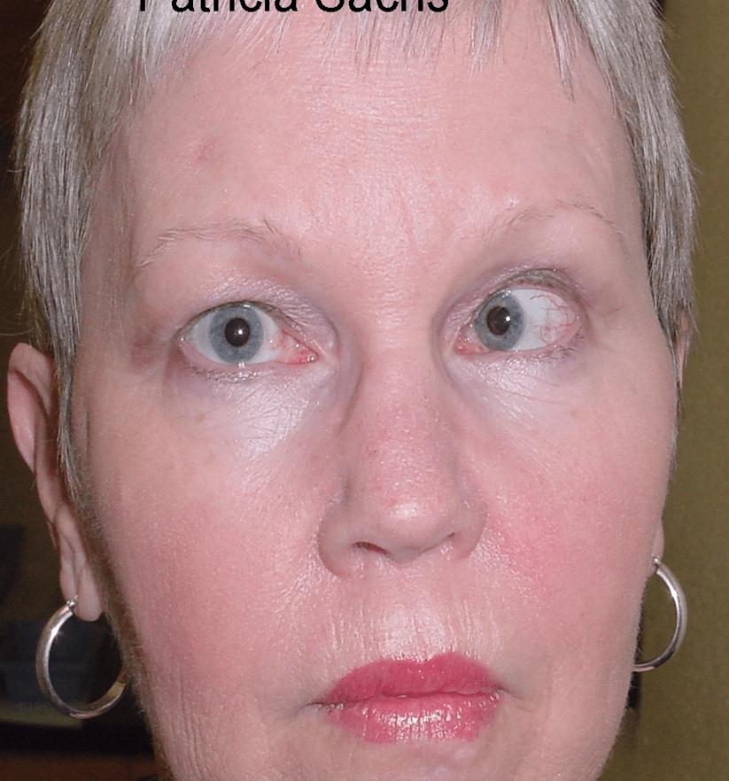 6th Surgery Palsy Nerve