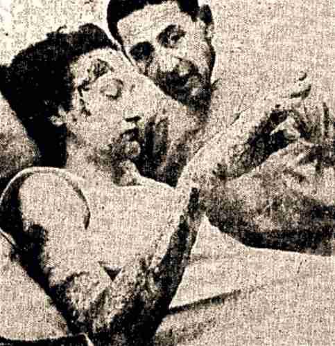Η Dorothy Haralson, που υπέστη σοβαρά εγκαύματα, ανακουφίστηκε μέσω του υπνωτισμού