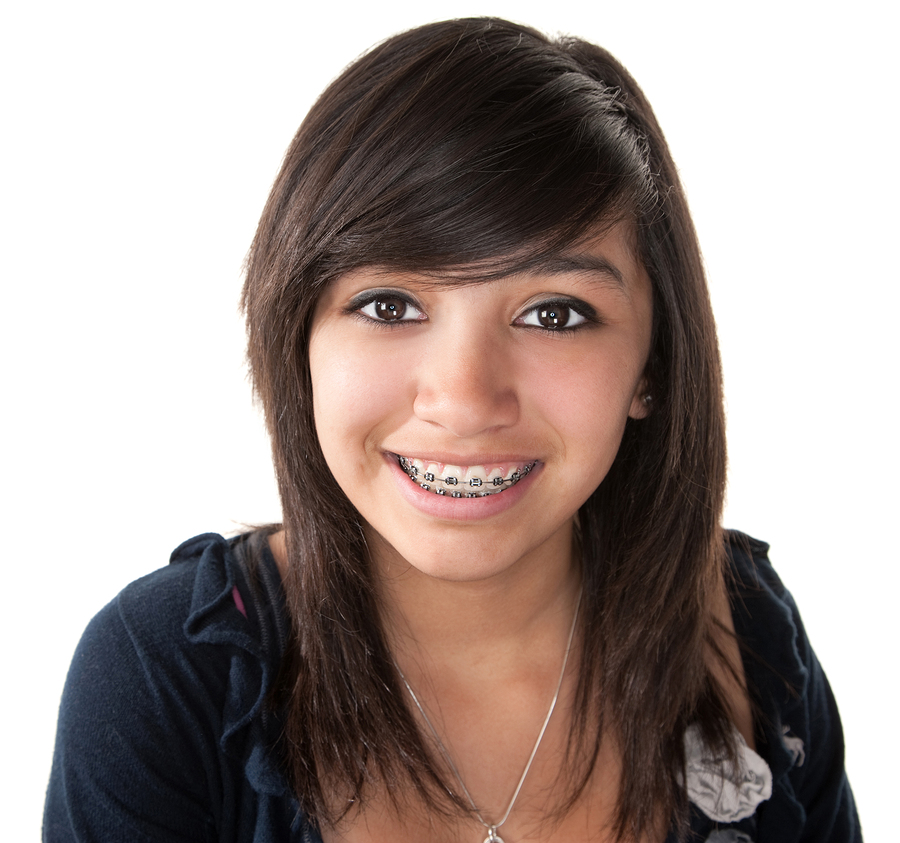 A child with braces on