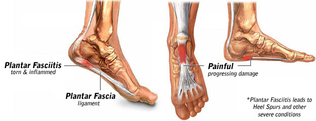 Image result for picture of plantar fascia