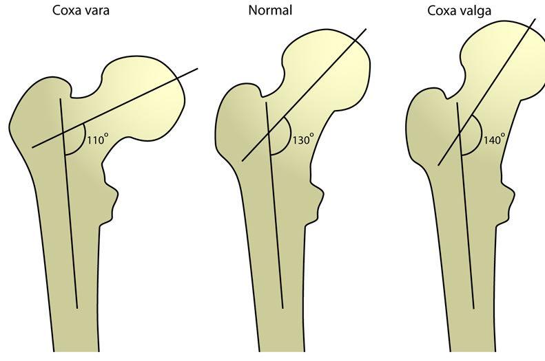 stretchingpro-grandsecart-coxavara-coxa-valga