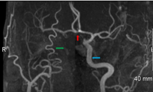 MRA right carotid dissection