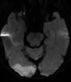 ct negative stroke A