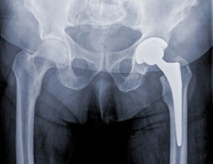 DePuy lawsuits mounting