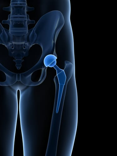 DePuy Orthopedics Pay $2 5 Billion To Settle Defective