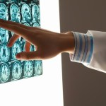 Traumatic Brain Injury Increases Parkinson's Disease Risk