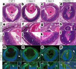 Comparisons of E14.5 eye histology and PAX6 protein expression