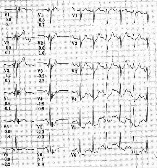 hipertenzija ir jos paveikslėliai