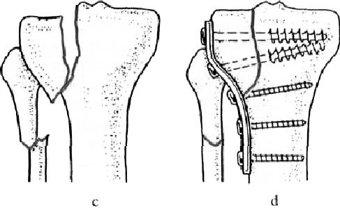 a térdízület kezelésének intraartikuláris törése