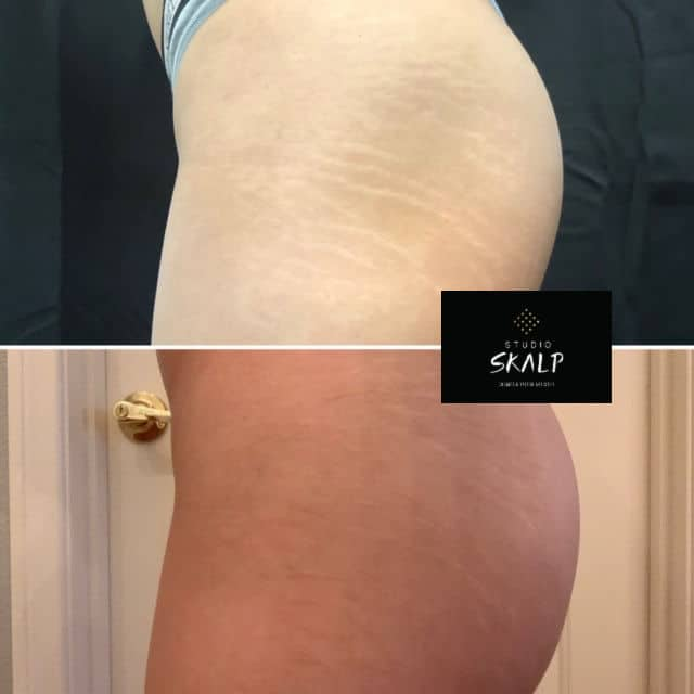 before and after stretch mark camouflage tattoo