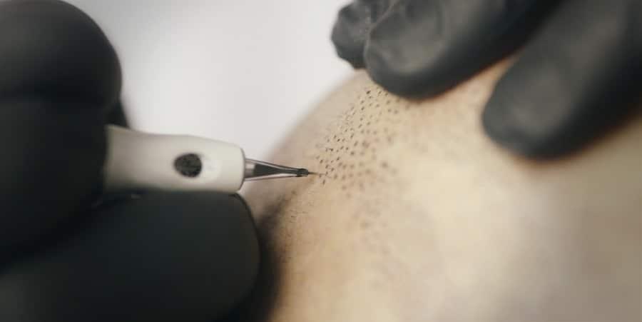 scap micropigmentation hairline tattoo