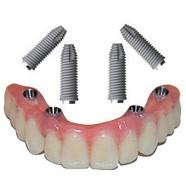 Capsula Dentaria Sanguinamento Gengivale Estetica del Sorriso Impianti Dentali Roma Studio Dot Massimiliano Tedaldi Odontoiatria Roma Chirurgia Maxillo facciale 02