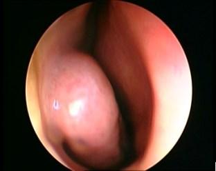 Poliposi nasale Endoscopia nasale Sinusite Ipertrofia Turbinati Decongestione Turbinati Deviazione Settale Patologia Nasale 07