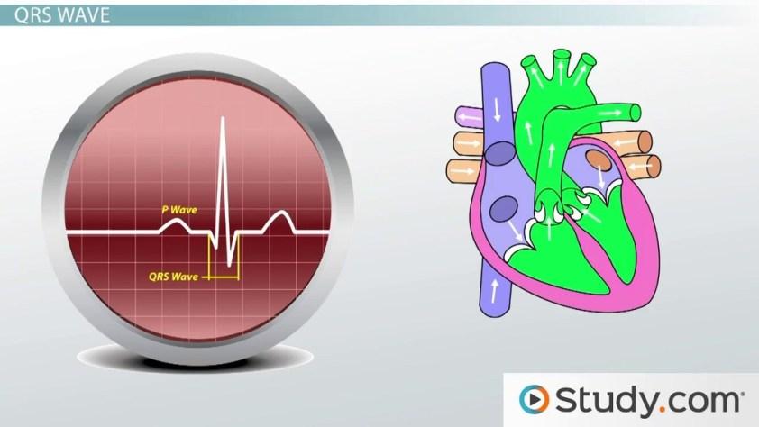 Electrocardiogram (ECG): Definition & Wave Types - Video ...