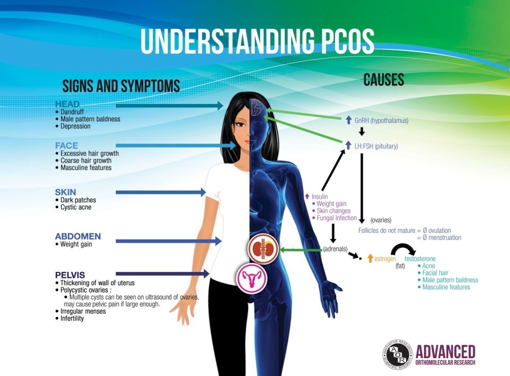 Image result for pcos