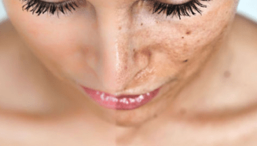 See How to get rid of hyper pigmentation