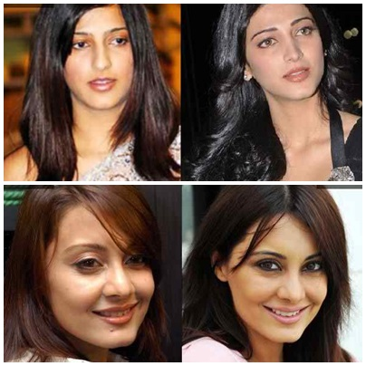 Which Bollywood Celebrities Opted Cosmetic Surgery