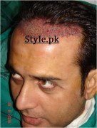 actor shahood alvi hair transplant