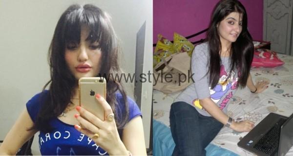 Zainab Jameel Lip Surgery