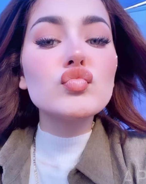 Hania Amir Get Lip Fillers