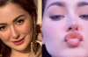 Famous Pakistani Drama Actresses Who Got Lip Fillers