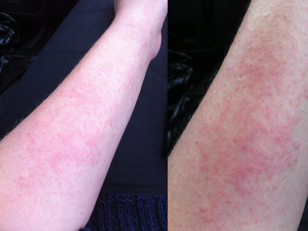 allergisk mot luft