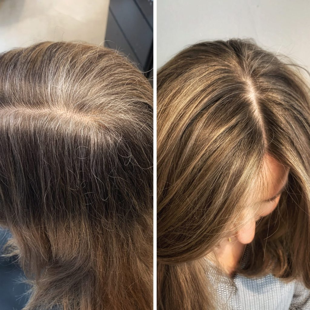 förhindra grått hår