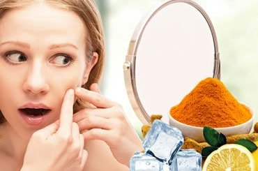 how to get rid of acne remedies