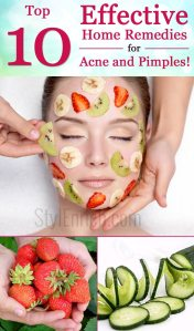 Home remedies for acne and pimples